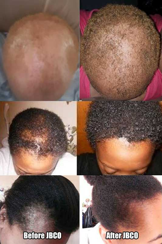 black castor oil hair growth before and after jamaican black castor oil hair growth how to use reviews